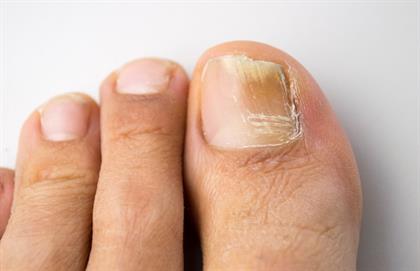 fungus on toenail