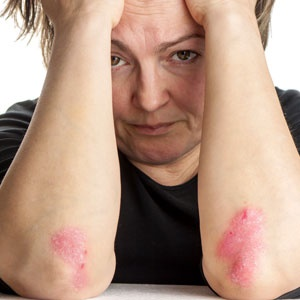 psoriasis and depression