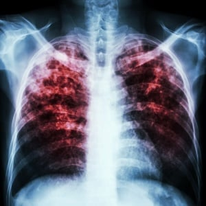 What is TB?