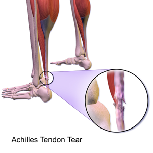partial or total rupture of achilles tendon health24