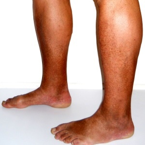 treatment for poor circulation in the legs