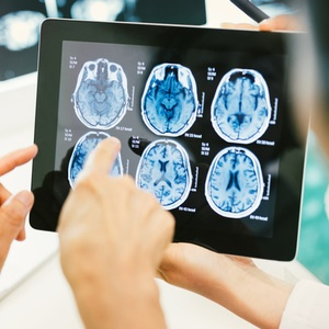 PTSD after brain injury can cause physical changes to the brain