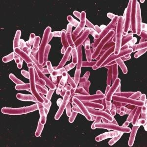 New approach to drug-resistant TB