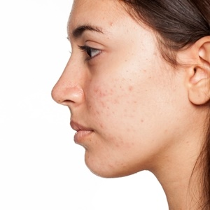 Adult acne can benefit from exfoliation.