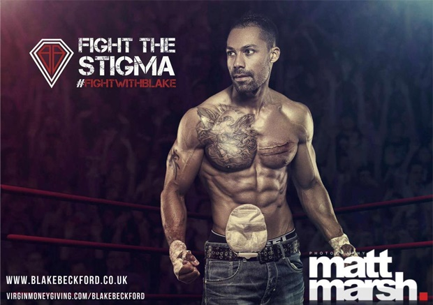 At Raising Awareness Of Those Living With Ibd And To Help Reduce Stigma Associated Inflammatory Bowel Disease Having An Ostomy Colostomy Bag