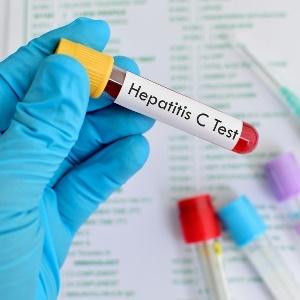 Sharing 'snorting straws' spreads hepatitis C