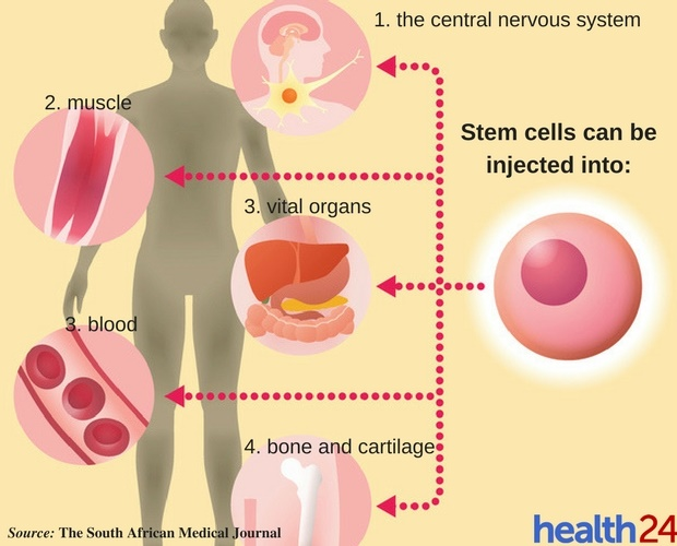 Is stem cell injection the cure-all miracle? | Health24