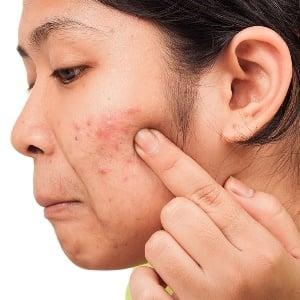 Symptoms of acne | Health24