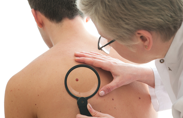 Doctor checking a man's mole.