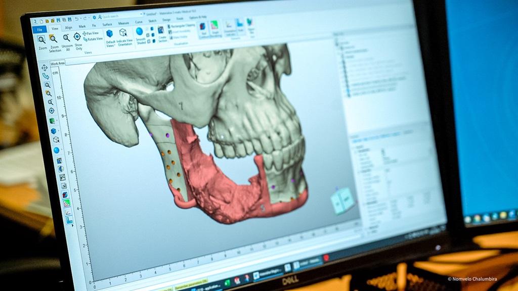 modern medicine, 3d jaw implant