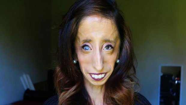 How Being Called The World S Ugliest Woman Quot Changed Her Life
