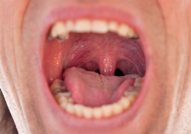 Normal Tonsils SEE: Do you kno...