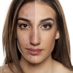 Prevention of acne depends on various factors