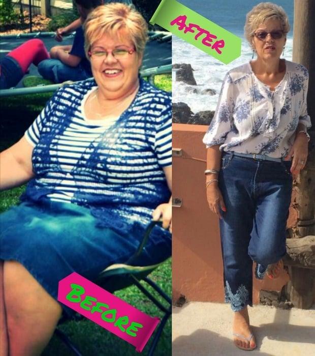 Cecilia Deetlefs Gastric bypass surgery vertical b