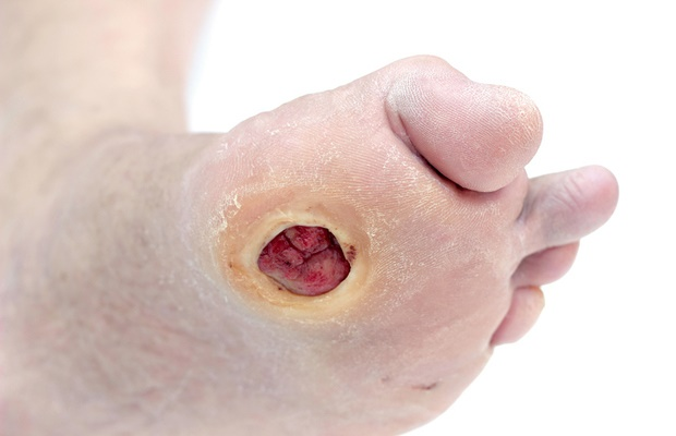How To Spot Diabetic Foot Complications Early Health24