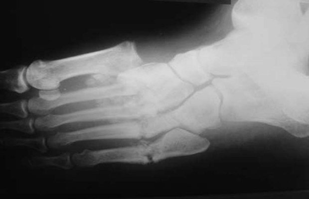 xray of foot