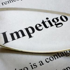 Impetigo is contagious