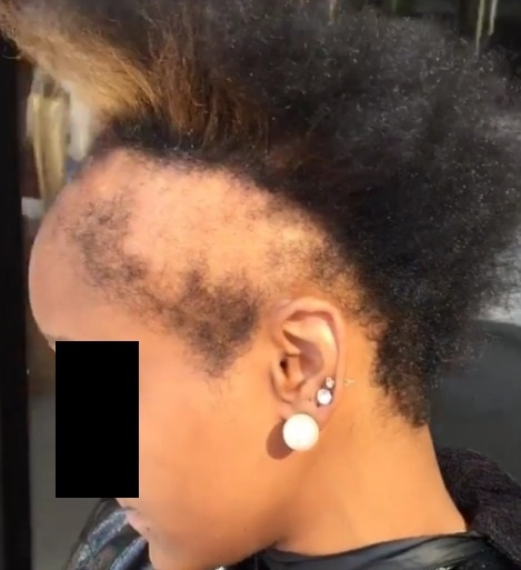 Can You Naturally Get A Hairline Back