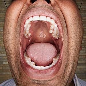 teeth, most theeth
