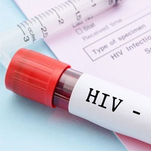 Early HIV treatment may lead to long-term remission. (iStock)