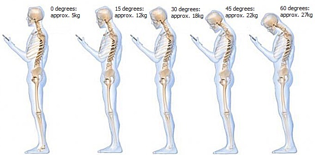 How your cellphone is breaking your neck | Health24