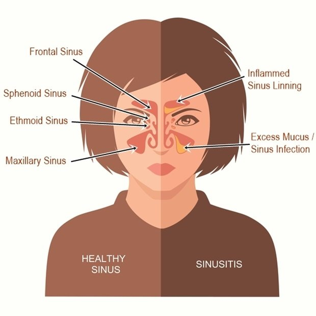 Image result for allergy sinuses