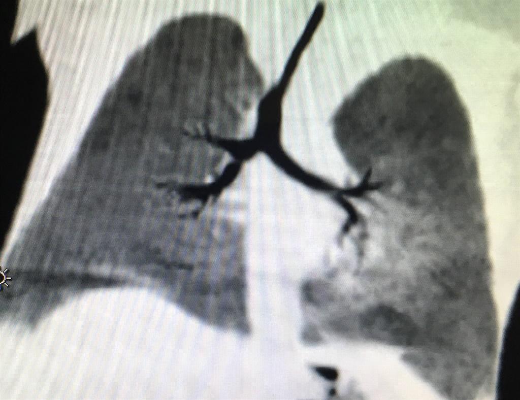 balloon dilation lung procedure Tygerberg Hospital