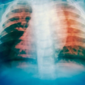 Drug resistant TB in the lungs