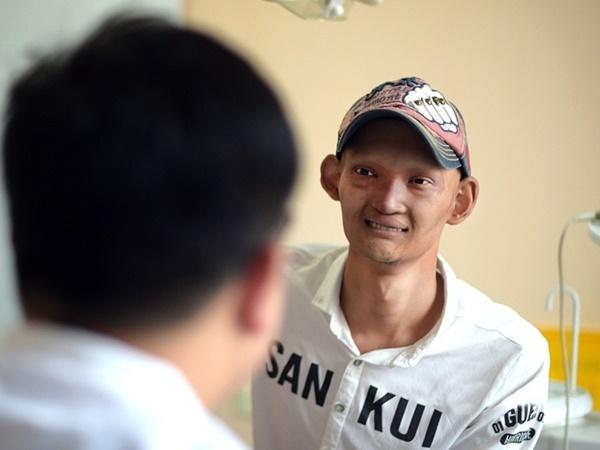Alien Boy In Plastic Surgery Face Change