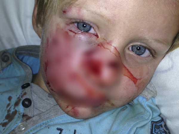 Eli shortly after the attack. PHOTO: Supplied