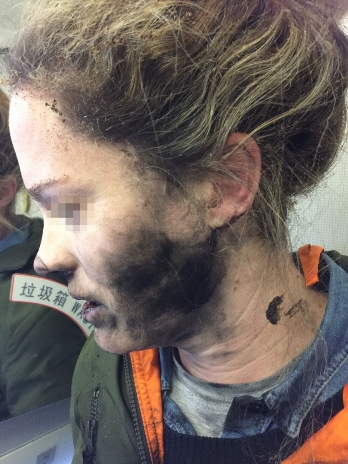 The woman's face was blackened by the fire from the mini explosion in her ears. Photo: ATSB