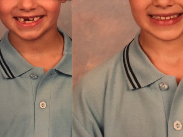 Missing Tooth boy