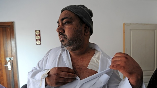 Nadeem Dawood (35) sustained a stab wound on the shoulder when three men robbed his Langalibalele Road flat on Wednesday morning.