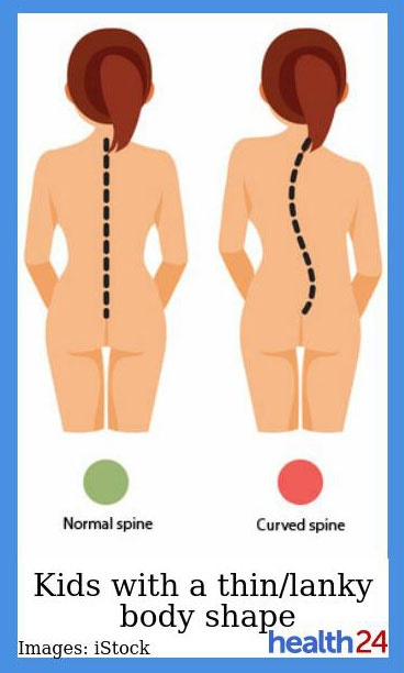 scoliosis,spines