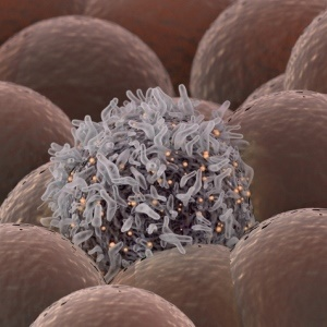 Rare cancers may be difficult to diagnose and treat.