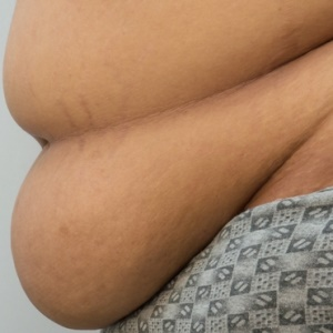 Weight-loss surgery may help curb urinary incontin
