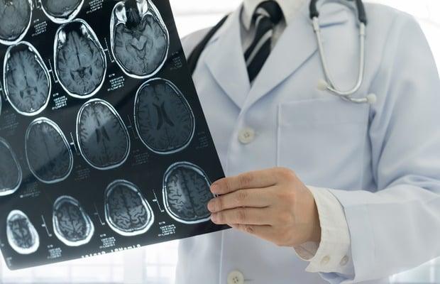 doctor holding brain MRI