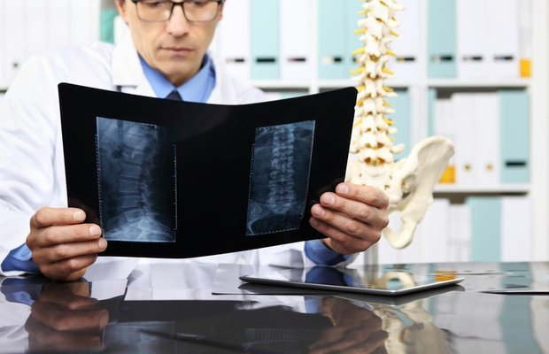 doctor looking at spinal x-rays