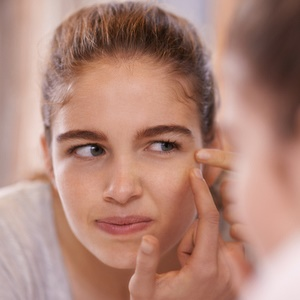 Most cases of acne can be treated with over-the-counter products.