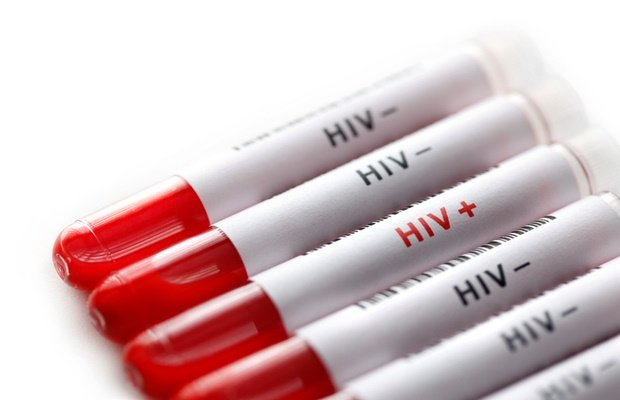 HIV blood samples