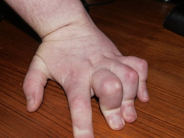 dietrich solter's fingers before arthritis surgery