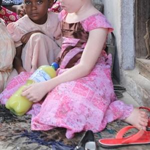 Albino body parts are used to make 'muti'.
