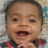 Baby with 'water on the brain' fights to stay alive