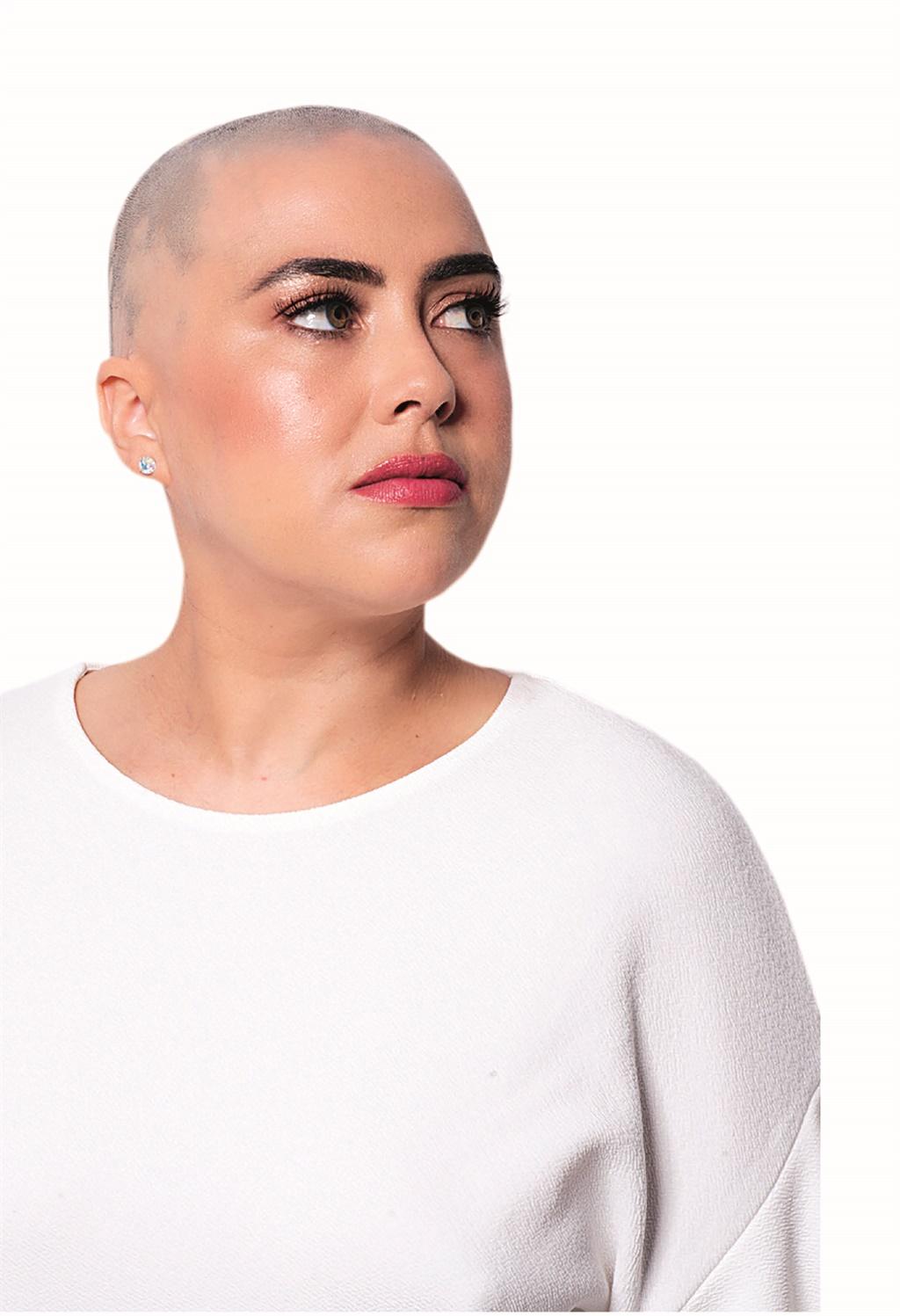 kelly pearce,alopecia