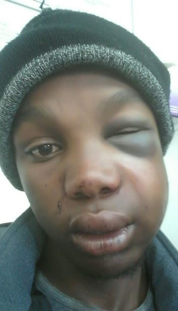 Mduduzi Mdunge is one of the two teenagers who was allegedly attacked by a group of men in Hilton last Saturday morning.