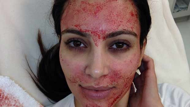 Kim Kardashian demonstrates what a vampire facial
