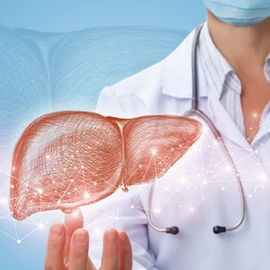 doctor shows liver with fatty liver disease