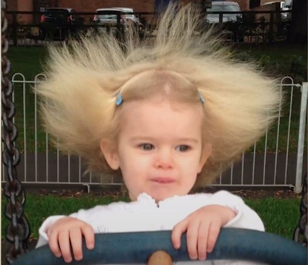 Watch This Girl Has Uncombable Hair Syndrome It S A