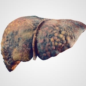 Cirrhosis of the liver can lead to liver failure and death.