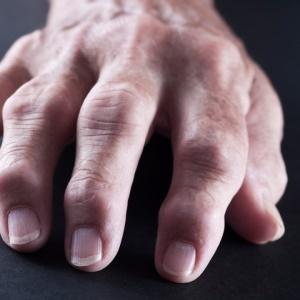It's not easy to diagnose rheumatoid arthritis.